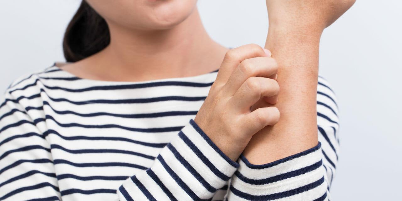 Vanliga orsaker till klåda i huden (och hur du lindrar besvären!)